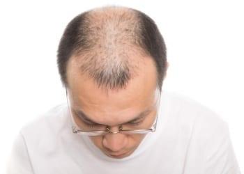 薄毛、禿げ